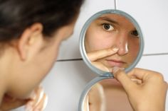 Acne And Oily Skin Get Rid Of Your Acne For Good! Acne is a nightmare cosmetic problem for sure. Many acne patients somet. Acne Skin, Acne Prone Skin, Acne Scars, Oily Skin, Skin Oil, Natural Acne Remedies, Home Remedies For Acne, Natural Cures, Pimples Overnight