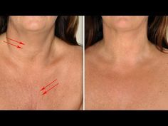 These two remedies to treat wrinkles on neck and chest are simple, natural and effective. So, follow the remedies and have a youthful look.