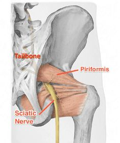 Piriformis syndrome: Treatment in 4 weeks with 3 exercises Piriformis Exercises, Hip Mobility Exercises, Hip Strengthening Exercises, Piriformis Muscle, Arthritis Exercises, Back Pain Exercises, Sciatica Stretches, Hip Pain Relief, Sciatica Pain Relief