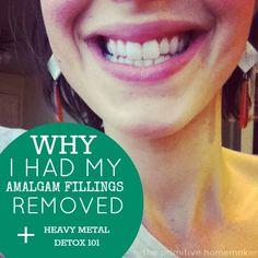 Why I Had My Amalgam Fillings Removed + Heavy Metal Detox 101 - The Primitive Homemaker - My WordPress Website Full Body Detox, Body Detox Cleanse, Juice Cleanse, Easy Detox, Healthy Detox, Detox Foods, Healthy Life, Detox Meals, Happy Healthy