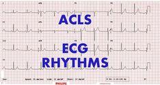 ACLS - ECG rhythm recognition & management, Part 1