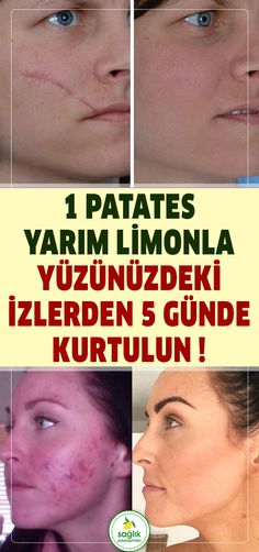 Yüzde ne kadar iz varsa hepsinden 1 patates yarım limonla sadece 5 günde kurt… If there are traces on the face, only 1 potato half lemon wolf in 5 days … – day # the Natural Herbs, Natural Healing, Beauty Skin, Health And Beauty, Mascara Hacks, Skin Mask, Natural Health Remedies, Homemade Skin Care, Facial Care