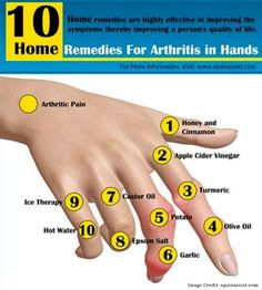 Pain Remedies Know the natural home remedies for arthritis in hands, which are available in your very own kitchen. These home remedies are highly effective in improving the symptoms of arthritis of hands thereby improving a person's quality of life. Natural Cure For Arthritis, Home Remedies For Arthritis, Types Of Arthritis, Natural Home Remedies, Health Remedies, Herbal Remedies, Psoriasis Remedies, Finger Arthritis, Holistic Remedies