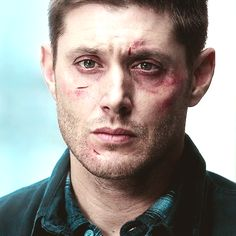 Dean Winchester. Season 10, Girls Girls Girls. He's an incredible actor, this image alone is enough to make me tear up.