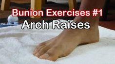 Bunion Exercises 1: Arch Raises to Avoid Bunion Surgery