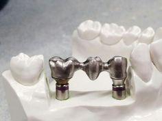 Dental Art, Dental Hygiene, Lente Dental, Happy Dental, Dental Anatomy, Dental Technician, Dental Veneers, Dental Laboratory, Dental Implants