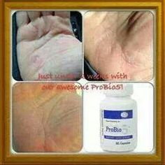 Everyone's can benefit from ProBio5!  KCSmith.myplexusproducts.com #335588