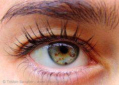 {http://www.eyedefine.com.au http://eyedefine.com.au/faq.php http://eyedefine.com.au/testimonials.php http://eyedefine.com.au/before-afters.php http://eyedefine.com.au/shipping-returns.php http://eyedefine.com.au/pay-by-phone.php} 10437 - Eye Iris Freckles