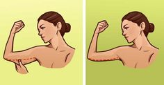 Fat on your arms is a problem that concerns a huge number of people, especially women. It is usually a result of genes, general excess fat or just ageing. Losing fat in this area seems to be very difficult, and you should be looking for specific methods and exercises. It is accumulated mainly around the […]