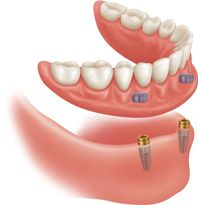 With the use of Zest Anchors' locators, your dentures will fit better than ever! These tiny pieces that attach to dental implants allow Dr. Dave to customize your denture to meet your needs. The locator's ability to pivot makes eating feel more natural as it allows for movement while you chew, without the worry of losing their seal and falling out. All our patients who have added these attachments to their dentures say it's the best decision they could have made to enjoy their new smile!