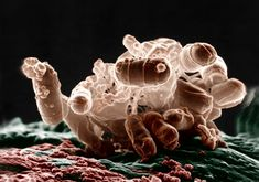 Science and Sensibility Unintended Consequences: Cesarean Section, The Gut Mic. - Birth - Science and Sensibility Unintended Consequences: Cesarean Section, The Gut Microbiota, and Child - Viral Infection, Bacterial Infection, Rheumatic Fever, Red Rash, Swollen Lymph Nodes, Hpv Vaccine, Unintended Consequences, Ab Diet, Strep Throat