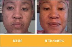 Such happy results in only the first 2 months of using R+F Reverse Regimen...it's suitable for all skin types!! gwendab2@gmail.com