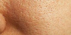 Máscara de ovo que tira oleosidade do rosto e diminui os poros dilatados - Bolsa de Mulher