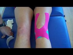 Kinesiology Taping for Knee Pain - patella tendonitis and Patella femoral pain