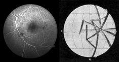 Intussen weten we dat Lowell op Venus geen kanalen zag, maar de reflectie van de bloedvaten van zijn eigen oog.
