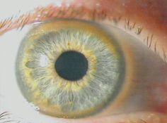 Kayser-Fleischer-Ring.jpg (356×265)