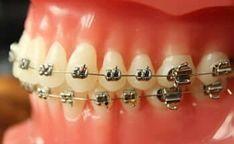 Braces, Teeth Retainer, First Aid, Suspenders, Dental Braces
