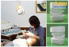 Bọc răng sứ có thể khắc phục tình trạng gãy răng cửa hiệu quả