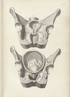 Tab. VI. Smellie, William (1697-1763 https://pinterest.com/pin/287386019947776936). A sett of anatomical tables... of the practice of midwifery. London: [s.n.], 1754 ( https://www.pinterest.com/pin/287386019949226613).  Artist: Jan van Rymsdyk.