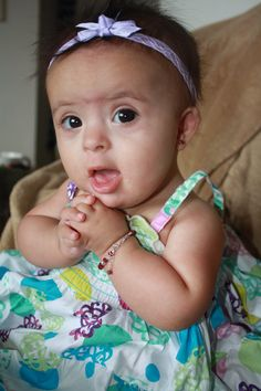 my baby girl is soooo cute with an extra chromosome, she has down syndrome