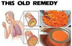 Say-Goodbye-To-Cough-Phlegm-Flu-and-Clean-The-Lungs-Forever-With-This-Old-Remedy