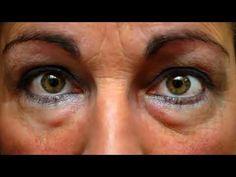Can Face Training Workouts Eliminate Eye Bags And Dark Eye Circles? Foot Remedies, Natural Remedies, Dark Circles Under Eyes, Les Rides, Eye Wrinkle, Puffy Eyes, Pale Skin, Tips Belleza, Natural Treatments