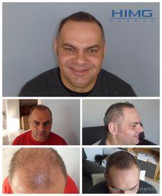 L. Zoltán - 9000 hajszál beültetése - HIMG Klinika  Zoltán hajbeültetése nagy folyamatnak számított a Klinikánkon, ugyanis a komplett fejtetőjére ültettünk be 9000 hajszálat. E két napos beavatkozás után egy évvel Zoltán is boldogabb ember lett. Az eredmény fantasztikus lett.  http://hajgyogyaszatszeged.hu/