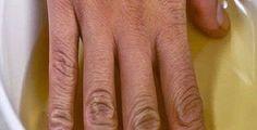 Immergi le mani in aceto di mele 2 volte alla settimana e guarda cosa succede