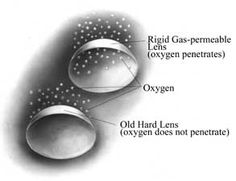 Type of contact lens: Rigid Gas Permeable Contact Lenses are made of rigid, water-less plastic combined with gas-permeable materials that allows more oxygen than hard lenses do, to pass through and reach the cornea. - https://goo.gl/ZeVyXe
