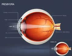 Presbyopia:  Also called Farsightedness, is the condition where the lens of the eye loses flexibility, making it difficult to see nearby objects. Symptoms include holding items at arms length and experiencing headaches after prolonged close work.