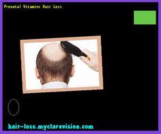 Prenatal Vitamins Hair Loss 172632 - Hair Loss Cure!