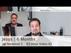 Hair Loss Treatment | Hair Transplant Before and After | 6 Month Update (Jesus) -  How To Stop Hair Loss And Regrow It The Natural Way! CLICK HERE! #hair #hairloss #hairlosswomen #hairtreatment Natural Transplants, Hair Restoration Clinic | Call Us 844-327-HAIR (4247) |  Hair Loss Treatment | Hair Transplant Before and After | 6 Month Update (Jesus) Jesus follows up with us... - #HairLoss