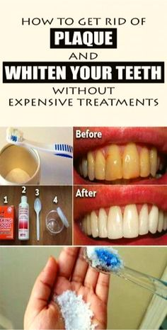 How To Get Rid Of Dental Plaque and Whiten Your Teeth Without Expensive Treatments Checked And Proved...