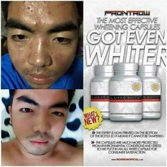 Luxxe White Enhanced Gluthatione💊💊 🔹M Whitening - DIY & Crafts Natural Supplements, Weight Loss Supplements, Uneven Skin Tone, Diet Pills, Pimples, Wasting Time, How To Stay Healthy, Whitening, Dinghy
