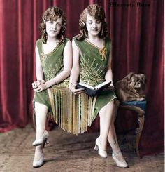 Violet and Daisy Hilton were conjoined twins sharing a common blood and nervous system. They were sold by their impecunious mother to a midwife, who greedily took advantage of their misfortune; while they sang, danced, played instruments in circus sideshows, their veritable slave-owner kept all their earnings and forbade them from socializing. Eventually a lawyer helped them escape and even reacquire money they were swindled out of. They went on to do movies (including 1932's Freaks).