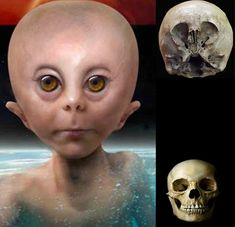 """Ancient Aliens on Earth? """"Starchild Skull"""" • discovered in 1930s near mine in Chihuahua, Mexico • 1999 paranormalist Lloyd Pye concluded interbreeding between humans/aliens • skull of 5 year old dying 1000 years ago • DNA shows no deformation due to hydrocephalus • cranial cavity 30% larger than normal human child +  many genetic differences • thinner skull bones stronger than human bone • unusual microscopic fibers in skull"""