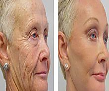 Mother Erases 20 Years of Wrinkles by Following This Simple Trick