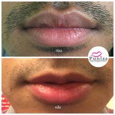 #Punisaclinic #ศัลยกรรม #ปาก #ศัลยกรรมปาก #ปากบาง #ปากกระจับ #ปากปีกนก  #Beauty #Number1 #Lips #LipReduction #LipSurgery #Professional #Lip #Reduction #Surgery #Thailand #plasticsurgery #lipreductionsurgery #thailand #doctorthinlips#Punisaclinic #lipsurgery #lipreduction#lipreductionsurgery #asianlips #plasticsurgeons#plasticsurgery #Thailandsurgery Lip Surgery, Clinic, Lips
