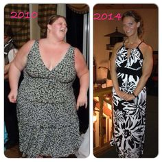 Karen Petersen saved to Bariatric Surgery before and after Lap Band surgery photos. Before And After Weightloss, Weight Loss Before, Weight Loss Goals, Fast Weight Loss, Lose Weight, Weight Loss Inspiration, Fitness Inspiration, Lap Band Surgery, Adele Weight