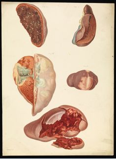Five examples of diseased organs. by E. Burgess, published between: 1877/1899.