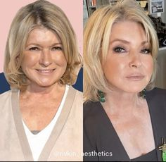 Martha Stewart New Face, Plastic Surgery, Martha Stewart, Photoshop, Celebrities, Beauty, Instagram, Women, Celebrity