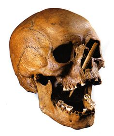 The Porsmose Man (historicalbodies) Tags: male skeleton denmark skull europe head arrow arrowhead embedded 3500 Ancient Aliens, Ancient History, Sea Peoples, Vintage Oddities, Vietnam War Photos, Picture Tag, Ancient Artifacts, Skull And Bones, Weird World
