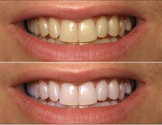 A perfect smile is always given by white and healthy teeth. There are many methods on the market that promise you to have white teeth in short time, but the results are not always the expected ones. However, there is a simple and common instrument that ca Coconut Oil For Teeth, Coconut Oil Pulling, Teeth Whitening Remedies, Natural Teeth Whitening, Skin Whitening, Perfect Smile, Perfect Teeth, Healthy Teeth, Teeth Health