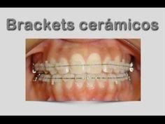 Brackets ceramicos | Brackets esteticos