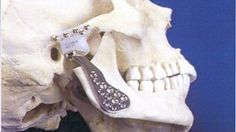 'Jaw replacement surgery ended my unbearable pain'