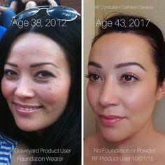 Pock Marks Before And After Rodan And Fields Before And