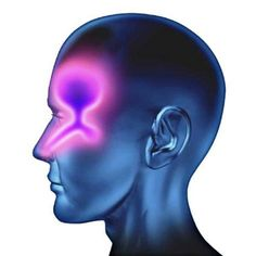 Watch This Video Exalted Remedies for Sinusitis and Allergies Ideas. Graceful Remedies for Sinusitis and Allergies Ideas. Congestion Relief, Chest Congestion, Nasal Congestion, Cleaning With Peroxide, Hydrogen Peroxide Uses, Peroxide Hair, Herbal Remedies, Home Remedies, Natural Remedies