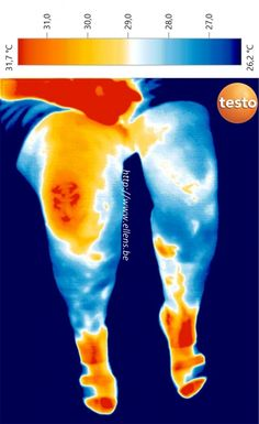 Imagerie thermique infrarouge de jambes gonflées Thermography of human legs