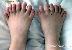 radiografias de los pies - Buscar con Google