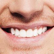 Denta Seal Pedi, Hollywood, Tips, Beauty, Rage, Health Recipes, Knee Pain, Healthy Teeth, Tooth Enamel